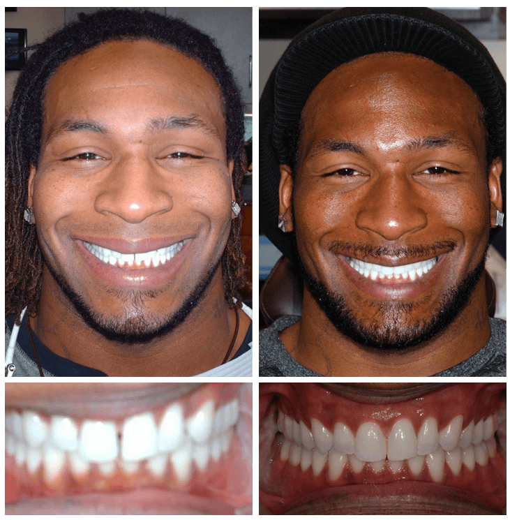 demetrius veal invisalign before and after