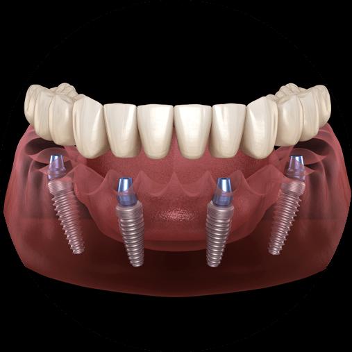 full arch dental implants