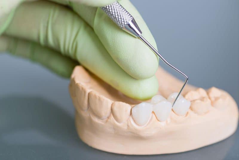 dental bridges model